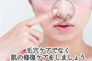 脂性肌が招く肌トラブル対応策-毛穴の黒ずみ-洗顔後は、毛穴周囲にたっぷりの保湿をして、肌の修復ケアをしましょう