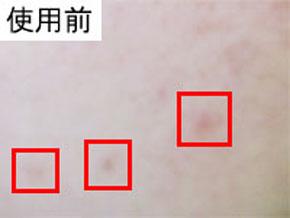 赤のとち姫の肌変化画像 使用前(シミとニキビにきび跡)