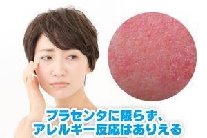 プラセンタの2大副作用は、感染とアレルギー反応