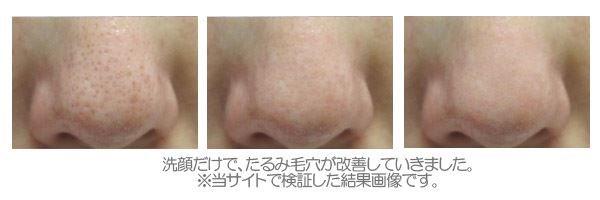 小鼻の角栓を取り除く!(肌変化画像)