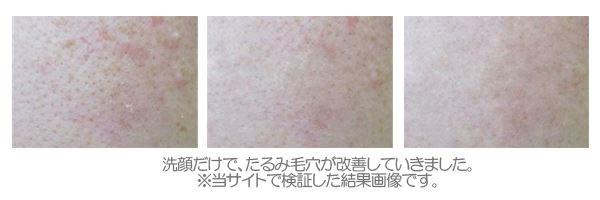 額(おでこ)-毛穴の黒ずみ・角栓の画像