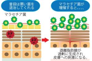 脂漏性皮膚炎の原因(イメージ図)