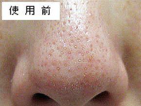 どろあわわの使用前で毛穴の黒ずみがびっしりある状態の鼻の画像
