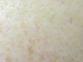モイストクリームソープ 肌変化画像 使用後
