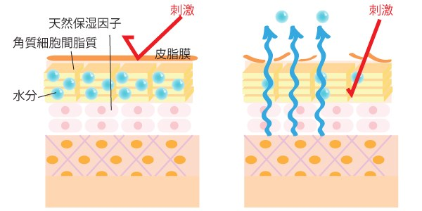 乾燥肌(イメージ図)