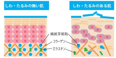 シワ・たるみのない肌とシワ・たるみのある肌の比較