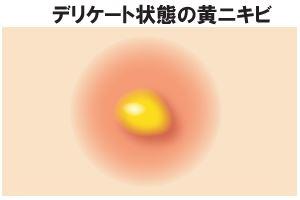 デリケート状態の黄ニキビ