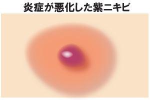 炎症が悪化した紫ニキビ