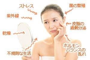 固形石鹸は、肌の負担を軽減できます
