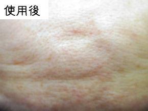 P.G.C.D.の肌変化画像 使用後(にきび)
