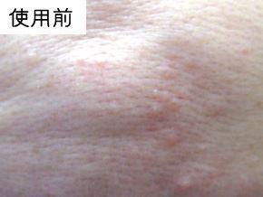P.G.C.D.の肌変化画像 使用前(にきび)