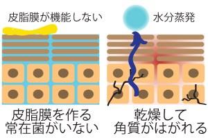皮膚常在菌と皮脂の働き