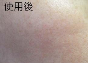 ホワイトニングリフトケアジェルのシミ消し効果 肌変化画像(使用後)