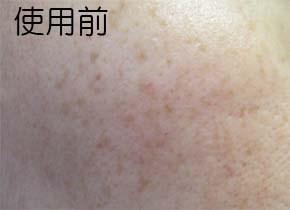 ホワイトニングリフトケアジェルのシミ消し効果 肌変化画像(使用前)