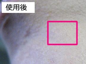 クロス・エ・キューブ Zero スノーウィーソープ 肌変化画像(使用後)