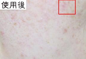 炭酸洗顔石鹸 テンデシカを使用した後の肌