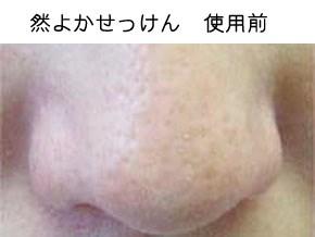 然よか石けんの肌変化画像(使用前)