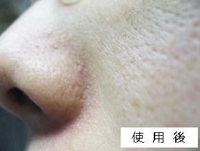 美シーサー使用後の肌