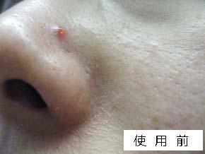 美シーサー使用前の肌