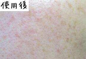 ヴァーナル石鹸の使用後にニキビ肌が改善された肌画像