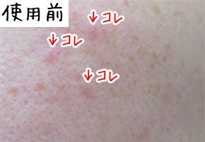 ヴァーナル石鹸の使用前のニキビ肌画像