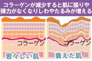 若々しい肌の断面図でコラーゲンがどうなっているかの図と衰えた肌でコラーゲンがどうなっているか現した断面図の比較画像
