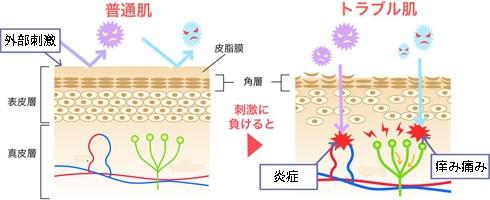 普通肌とトラブル肌の刺激の受け方の違い