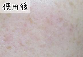 メディプラスゲルの美肌効果を検証(使用後)