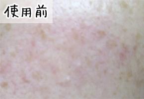 メディプラスゲルの美肌効果を検証(使用前)