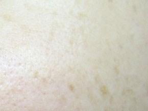 モイストクリームソープ 肌変化画像 使用前