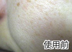 フィトリフトハリ効果 肌変化画像(使用前)