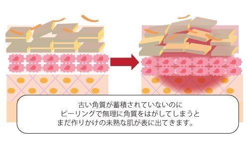 肌の表面をピーリング石鹸でケアしてまだ作りかけの未熟な肌が出てきてしまった解説図