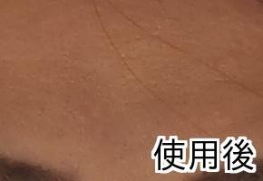 トリニティーライン毛穴効果 肌変化画像(使用後)