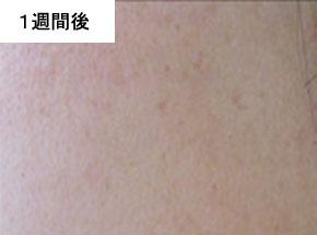 VCOマイルドソープ使用後の肌