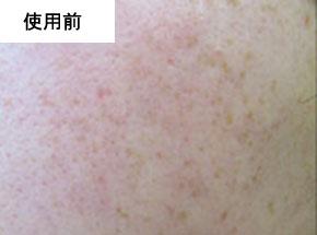 VCOマイルドソープ使用前の肌